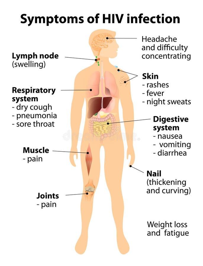 Symptomen van HIV besmetting royalty-vrije illustratie