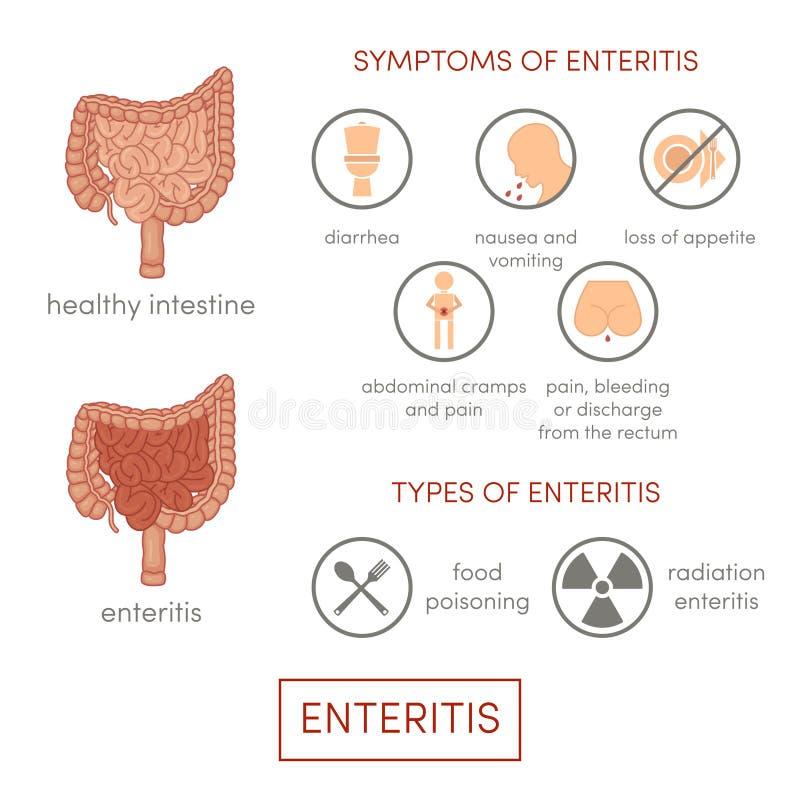 Symptomps da enterite ilustração do vetor