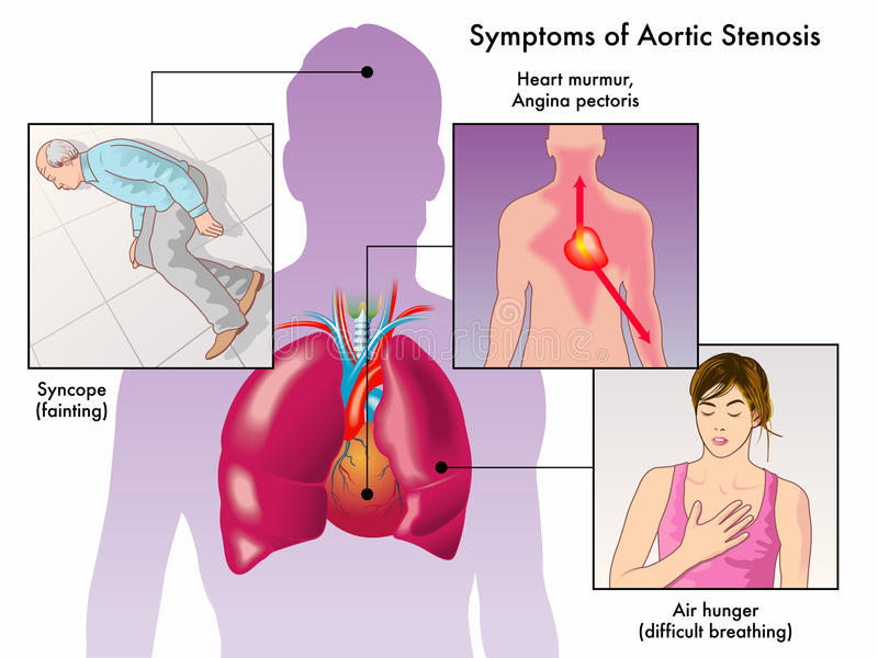 Symptoms Of Aortic Stenosis Stock Vector Illustration Of Breath