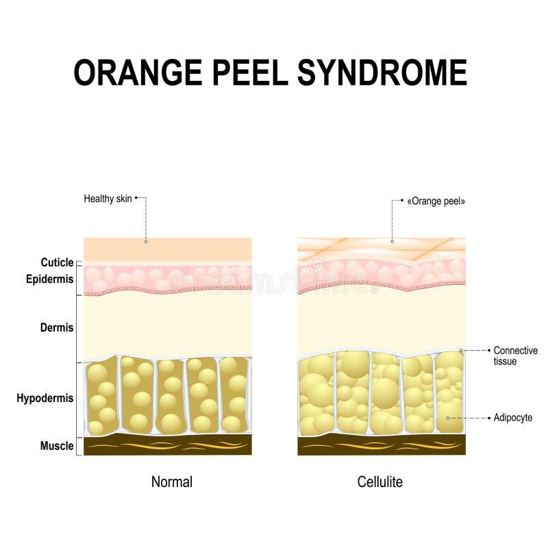 Syndrom Des Cellulite Oder Der Orange Schale Vektor Abbildung ...