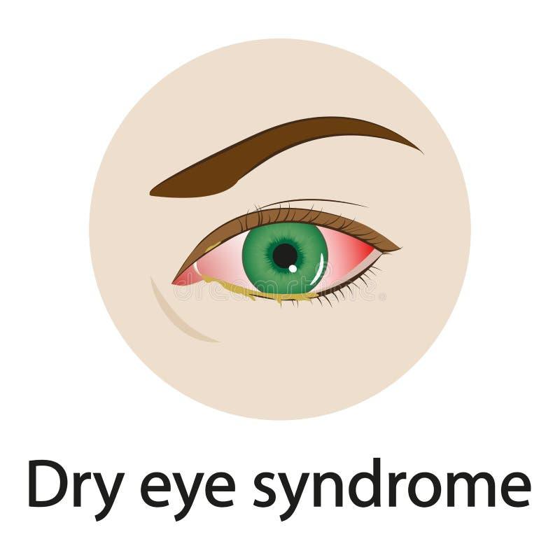 Syndrom för torrt öga också vektor för coreldrawillustration vektor illustrationer