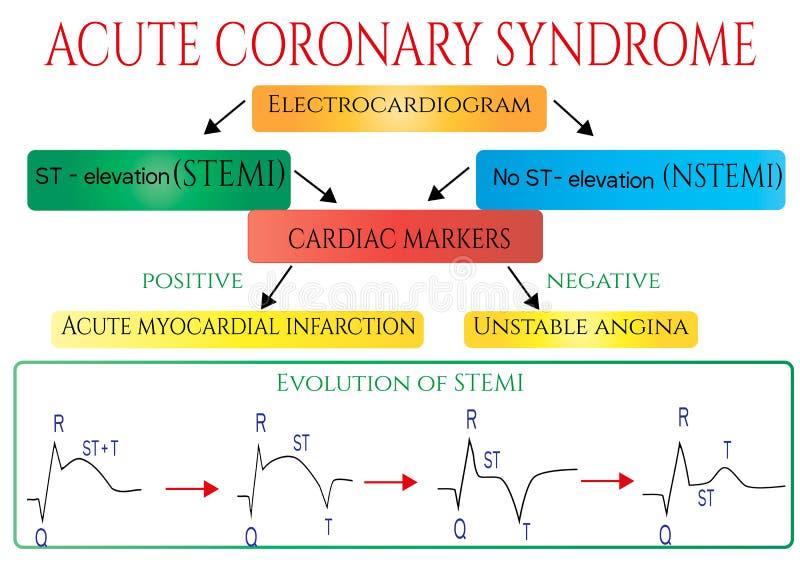 Syndrome coronaire aigu Électrocardiogramme schématique d'infarction( myocardique ; coeur attack) ; illustration libre de droits