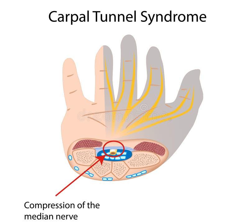 Syndrome du canal carpien illustration stock
