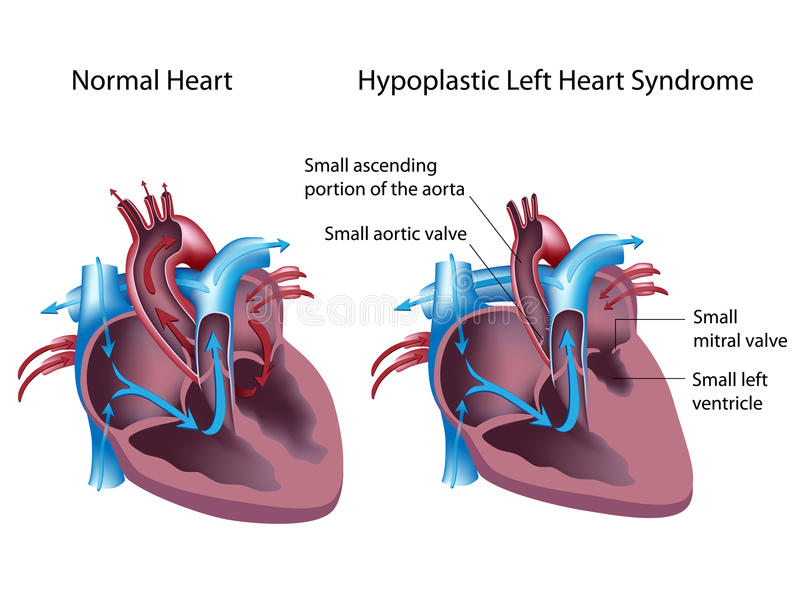 Syndrome gauche Hypoplastic de coeur illustration de vecteur