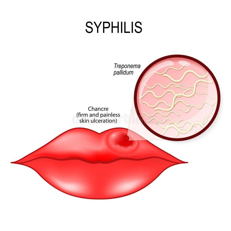syphilis Bordos humanos com câncer ON treponema - pallidum ilustração royalty free