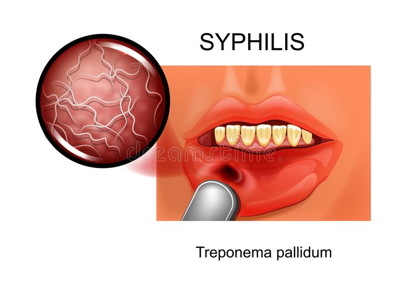 syphilis chancre ON treponema - pallidum ilustração stock