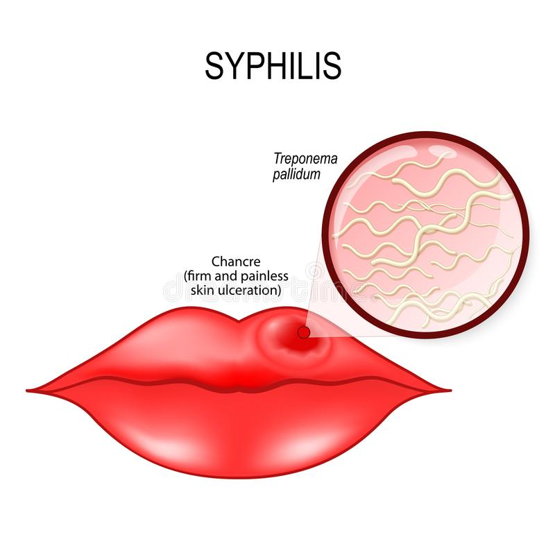 syphilis Mänskliga kanter med schanker Pallidum treponema - royaltyfri illustrationer