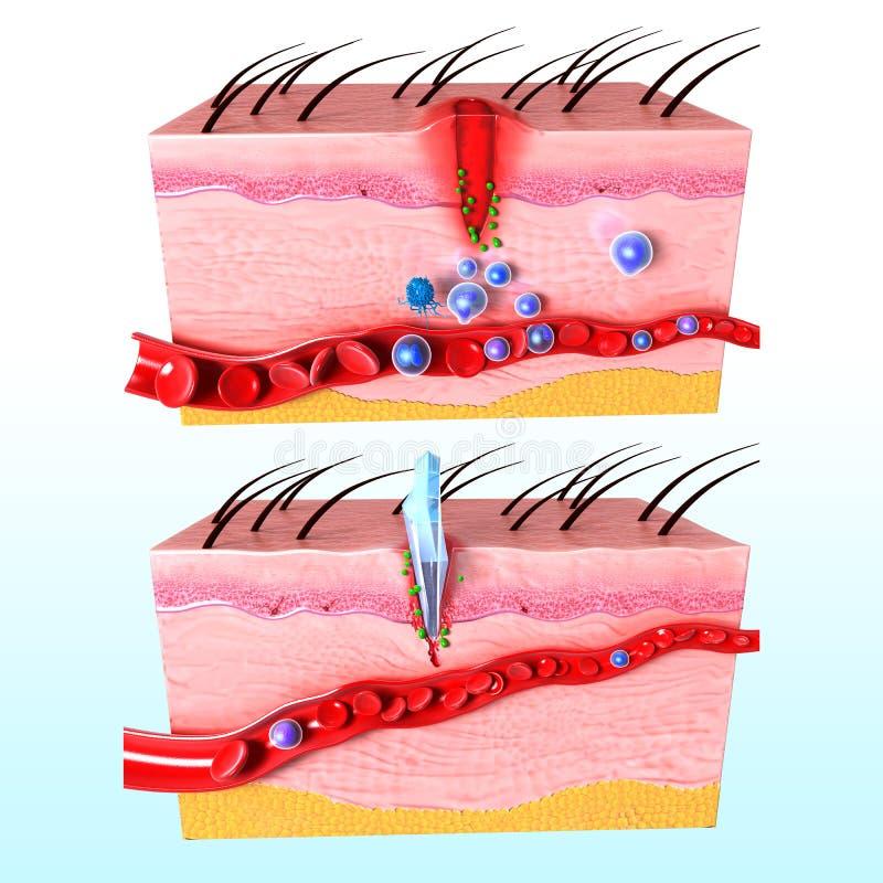 Système d'immuno-réaction de peau humaine illustration de vecteur