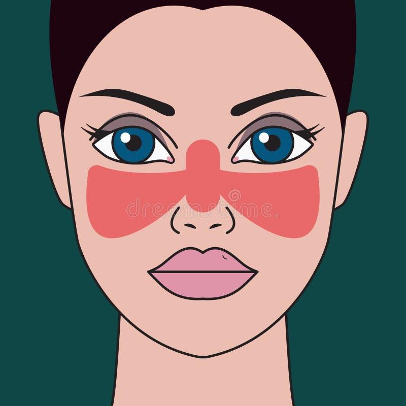 Systemisch lupus erythematosus royalty-vrije illustratie