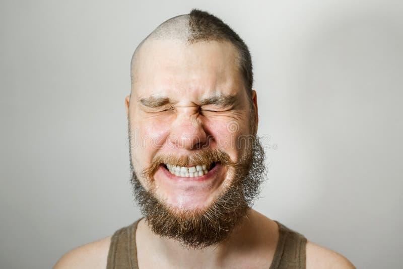 Szczęśliwy lub krzyczący Człowiek przed i po wypadnięciu włosów, łysienie na izolowanym tle obraz royalty free