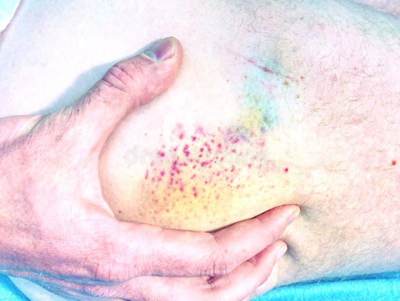 Szczegół krwiak, pękać żyły pod powierzchnią skóra właśnie obrazy royalty free