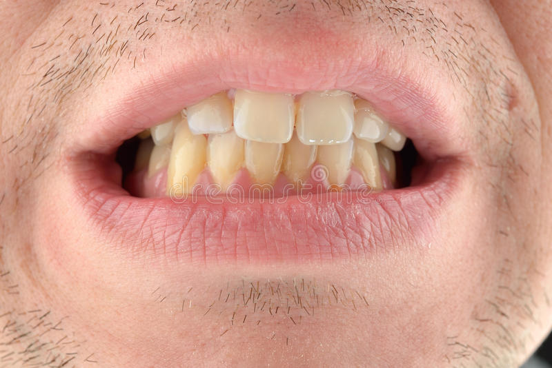 Szczegółowy wizerunek pokazuje jego zęby mężczyzna Stomatologiczna opieka zdrowotna Hyg obraz royalty free
