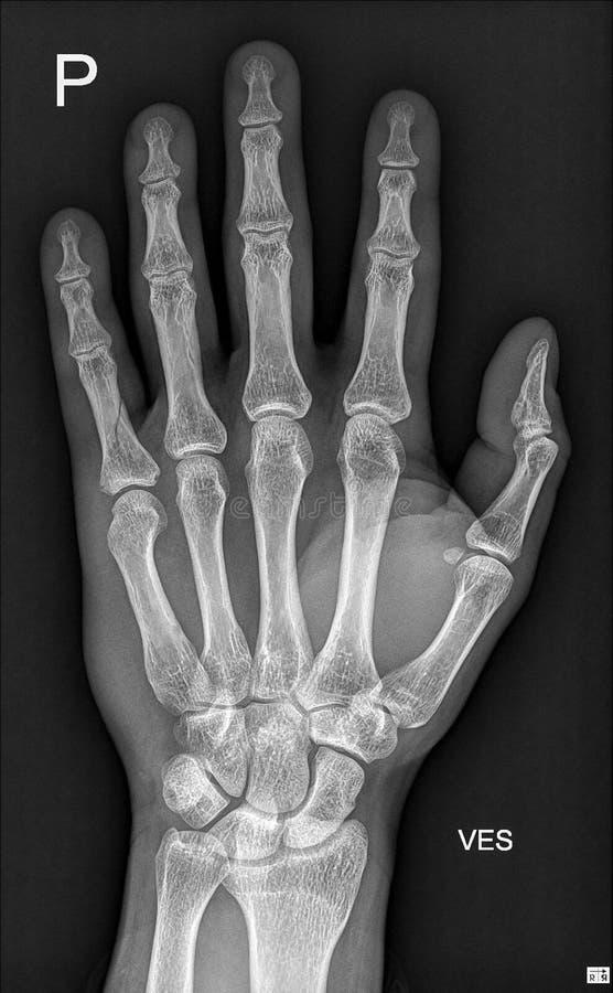 szczegółu ręki medyczny promień x obraz royalty free
