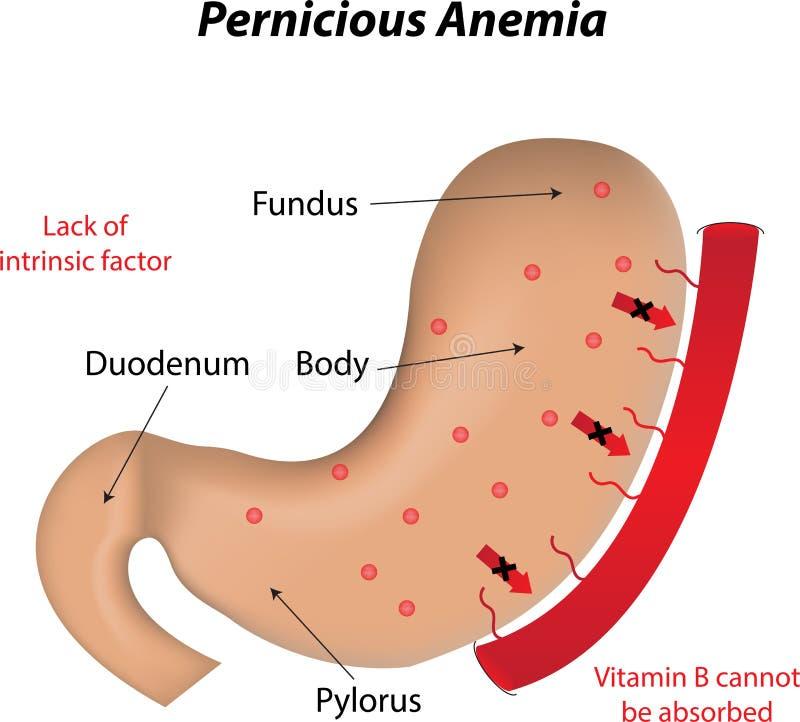 Szkodliwa anemia ilustracji