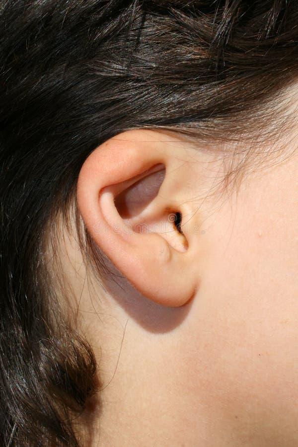 Szpotawy ucho Anormalny rozwój auricle Chirurgia plastyczna i kosmetologia obraz royalty free