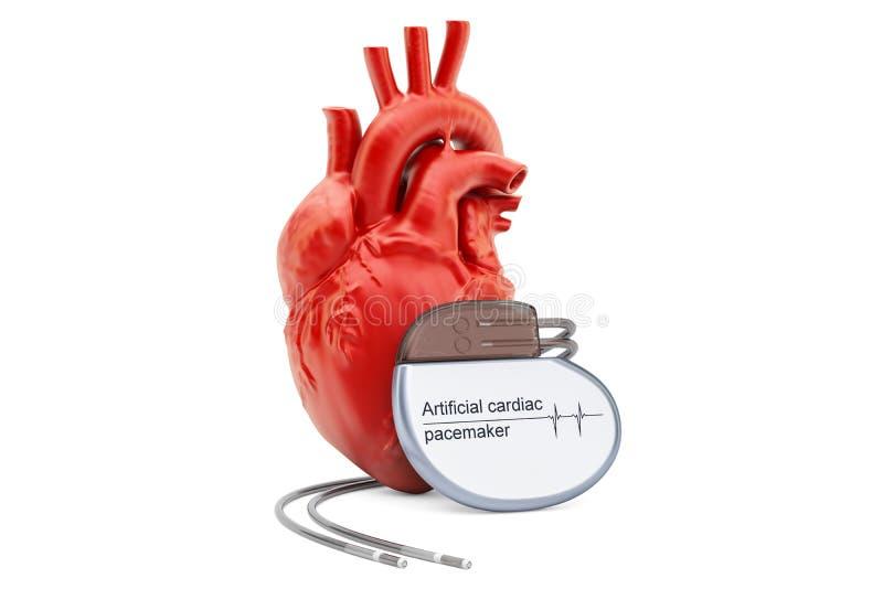 Sztuczny sercowy pacemaker z ludzkim sercem, 3D rendering royalty ilustracja