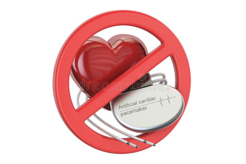 Sztuczny sercowy pacemaker z niedozwolonym znakiem, 3D rendering ilustracja wektor