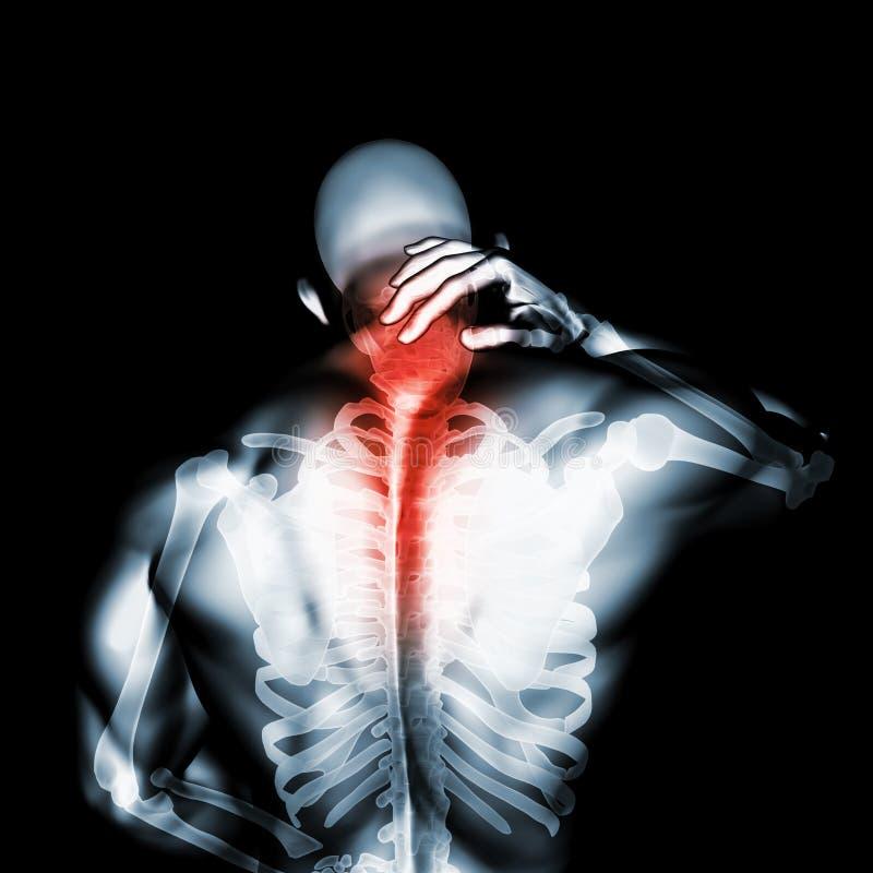 Szyja bolesna - karkowego kręgosłupa zredukowany promieniowanie rentgenowskie, 3D ilustracja fotografia royalty free