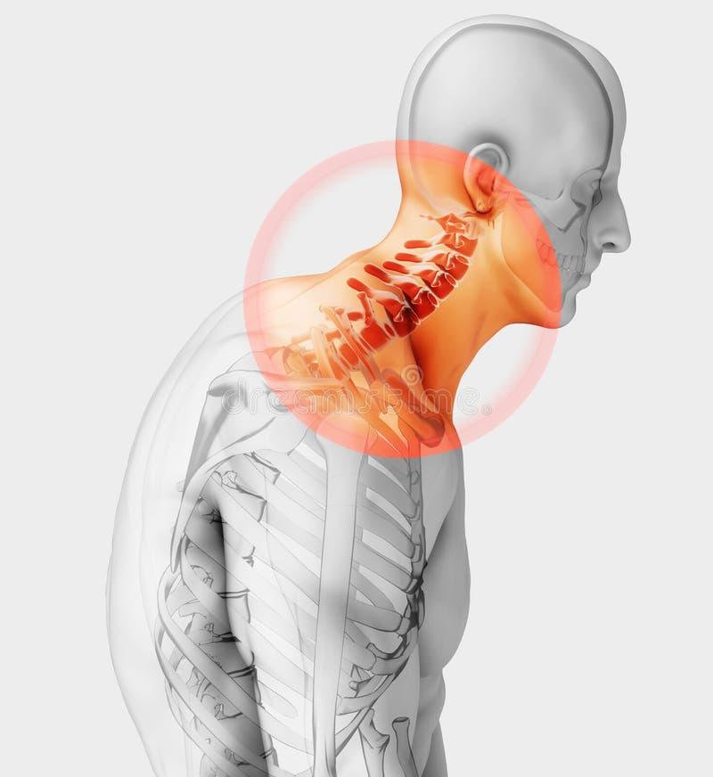 Szyja bolesna - karkowego kręgosłupa zredukowany promieniowanie rentgenowskie, 3D ilustracja zdjęcie stock