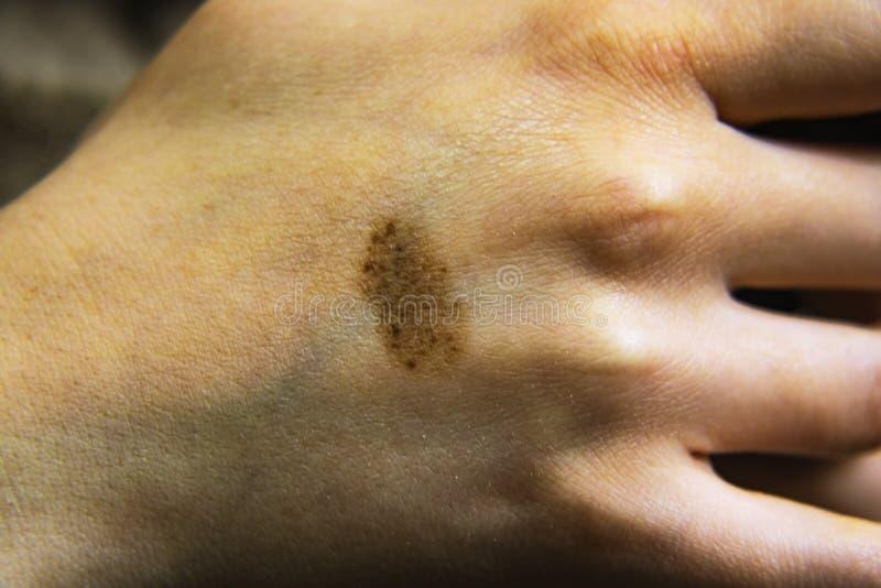 Tâche de naissance ou taupe sur la peau de la main Peut être employé pour le concept d'enlever des tâches de naissance photographie stock libre de droits