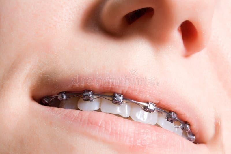 Tänder fotografering för bildbyråer
