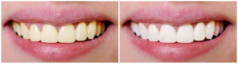 Tänder före och efter som gör vit fotografering för bildbyråer