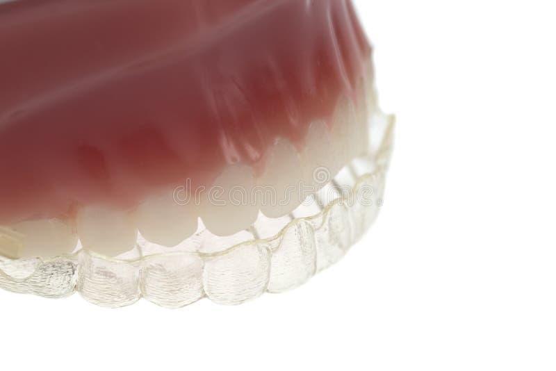 Tänder och tanden spjälkar arkivbild