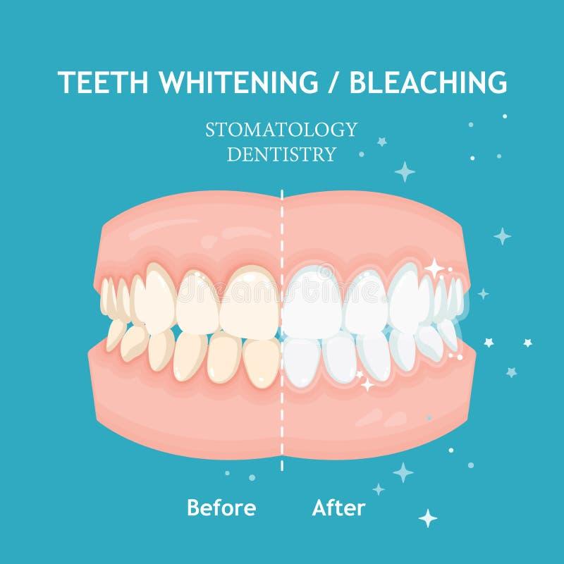 Tänder som gör vit och bleker begrepp Tandläkekonst- och stomatologyvektor stock illustrationer