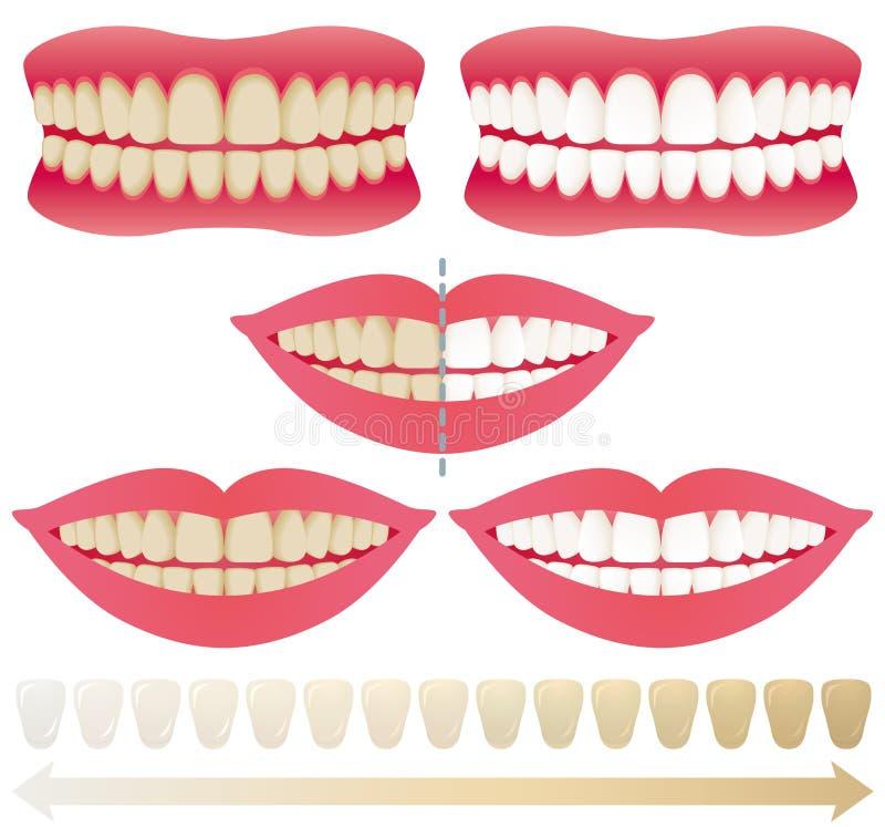 tänder som whitening royaltyfri illustrationer