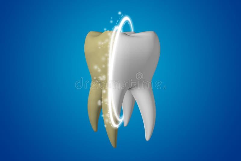 tänder som whitening Gulna smutsig tandblekmedel och frikänder den magiska linjen i en vit sund tand på en blå bakgrund royaltyfri illustrationer