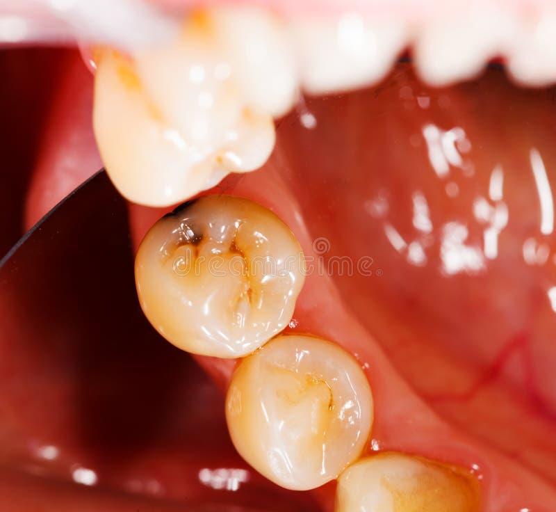 Tänder - tand- undersökning arkivfoto