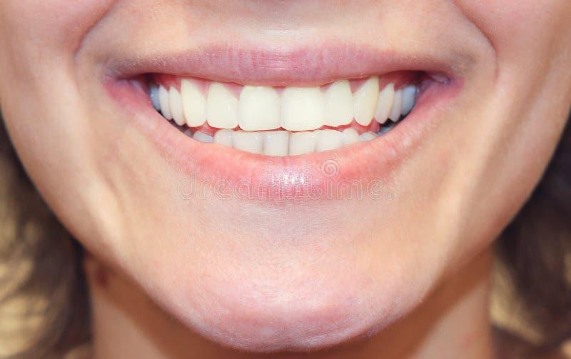 tät flicka som ler upp Vita tänder stänger sig upp arkivbild