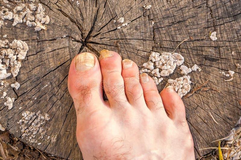 Tår av den manliga foten som smittas med en spikasvamp royaltyfri bild
