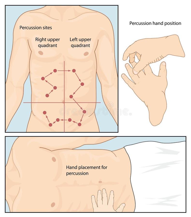Técnica abdominal da percussão ilustração royalty free