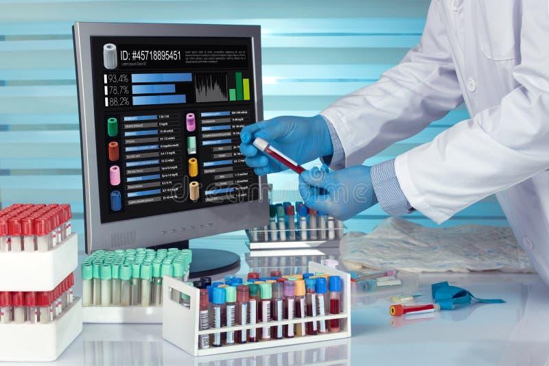 Técnico con un tubo de la sangre y el ordenador de la pantalla con softwar fotos de archivo