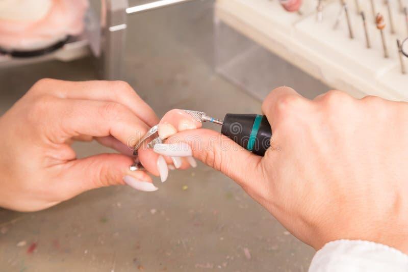 Técnico en un laboratorio dental que pule o que muele una prótesis o una corona imagen de archivo libre de regalías