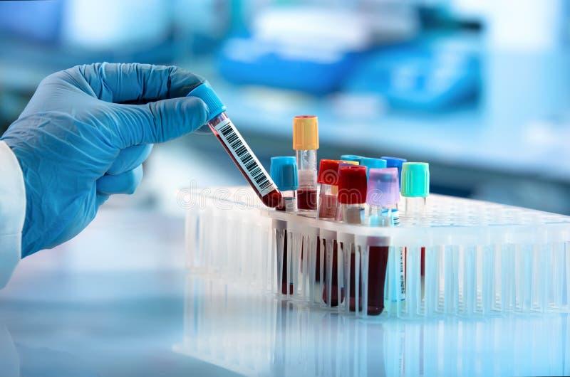 Técnico que guarda o teste do tubo do sangue no laboratório de pesquisa fotos de stock