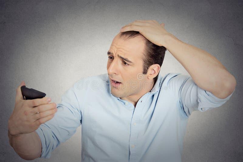 Tête choquée de sentiment d'homme, étonnée il est les cheveux perdants photos libres de droits