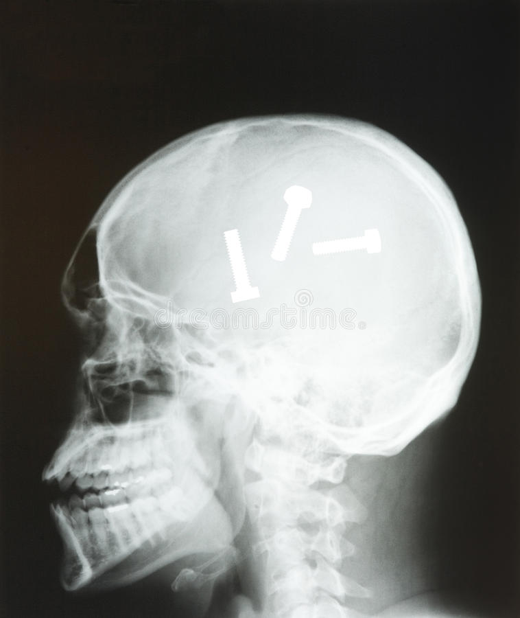 Tête de rayon X photo stock