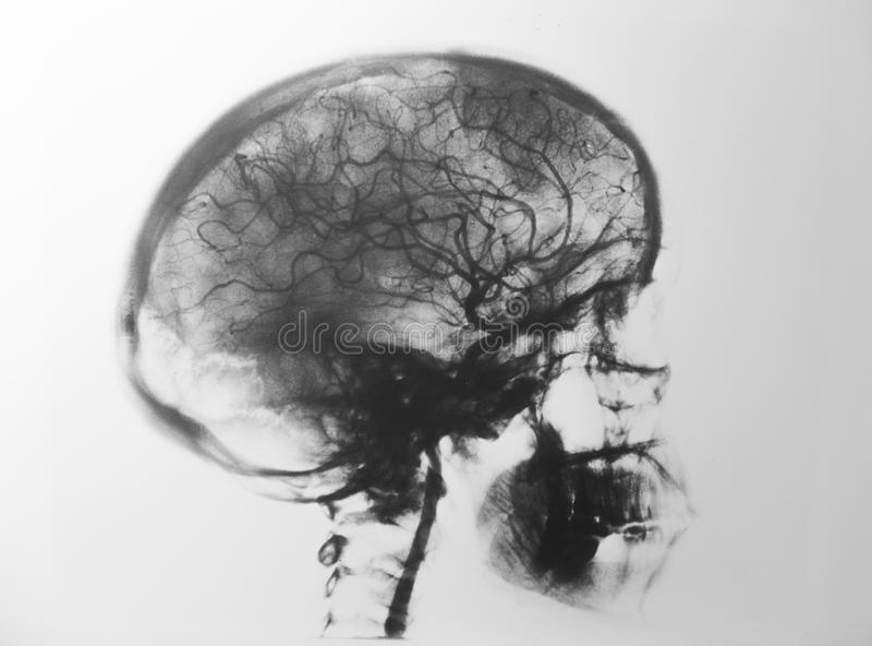 Tête de rayons X photo stock