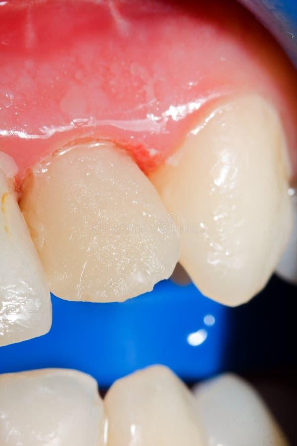 Tête provisoire pour la dent image stock