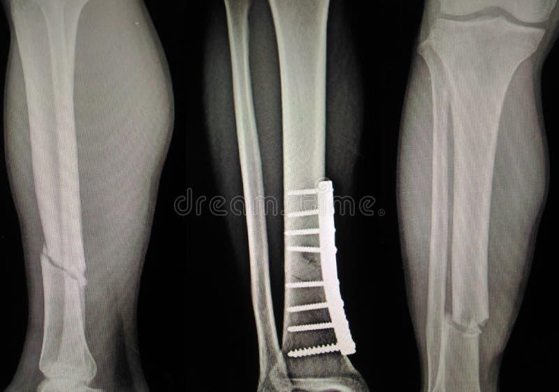 Tíbia do pé da fratura da mostra do raio X e fibular fotos de stock royalty free