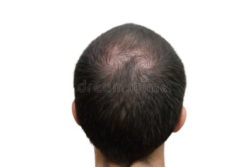 Tło łysa głowa zdjęcie stock