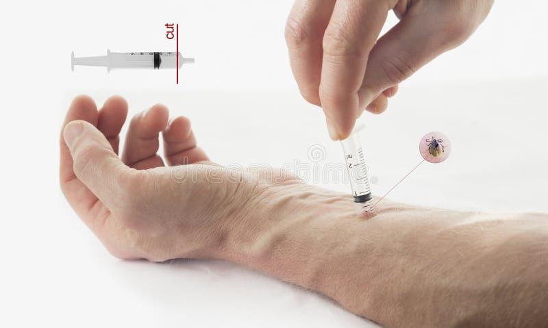 Ta bort en fästing från hud med en injektionsspruta arkivbilder