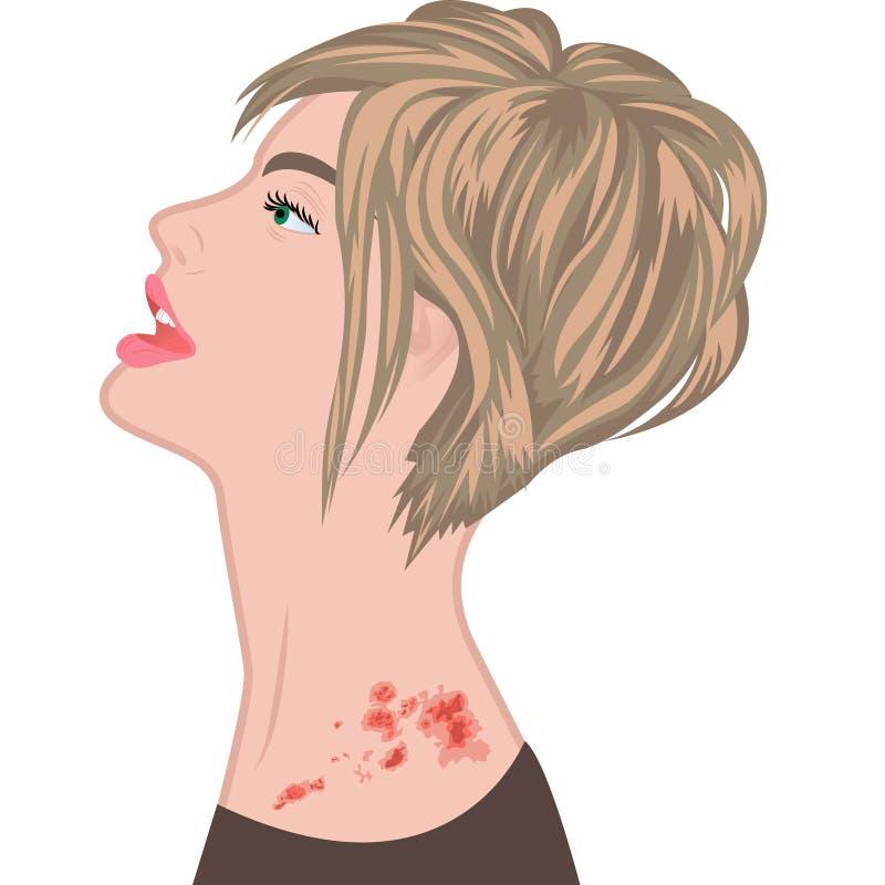 Tablas en un hombro de la mujer zoster de la varicela stock de ilustración