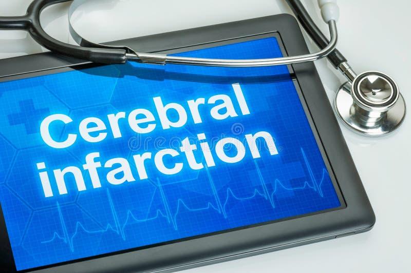 Tablet met het diagnose Herseninfarct royalty-vrije stock fotografie