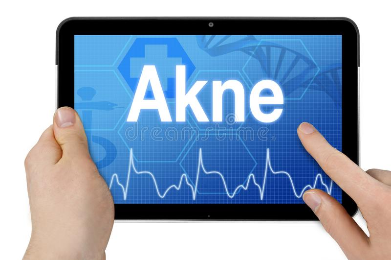 Tablet pc com écran sensível e diagnóstico com a palavra alemão para a acne - Akne fotos de stock royalty free