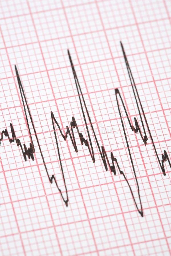 Tabulato dal cardiografo immagine stock libera da diritti