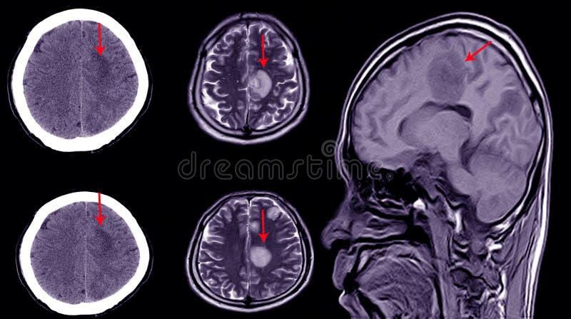 TAC del cervello di un paziente con storia di lesioni craniche leggere che mostrano un'ematoma subdurale grave immagine stock libera da diritti