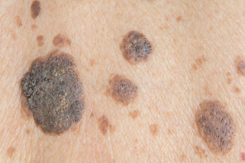 Taches de rousseur sur la peau image stock